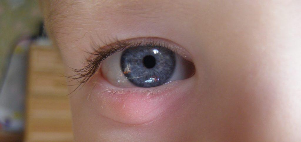 Как у ребенка лечить ячмень на глазу народными