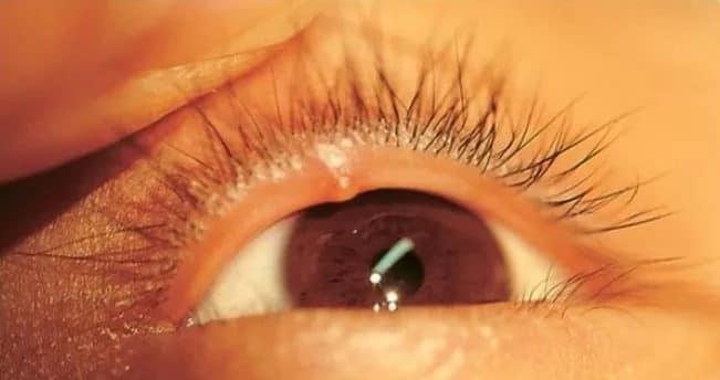 Ячмень на глазу как выглядит фото и как его лечить