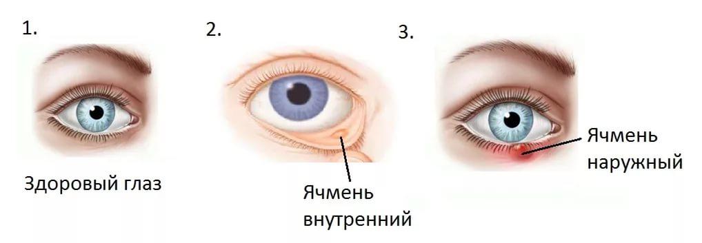 Отчего бывает глазное давление и как его лечить