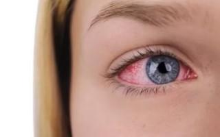 Основные методы лечения глазного конъюнктивита