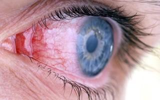 Все виды конъюнктивита глаз