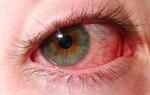 Классификация видов конъюнктивита глаз