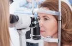 Классификация вторичной глаукомы и факторы её возникновения