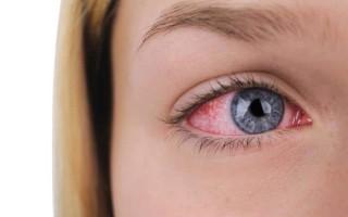 Основные симптомы и виды конъюнктивита