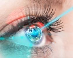 Лазерное лечение органов зрения при глаукоме