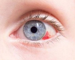 Чем лечить лопнувшие красные сосуды в глазах