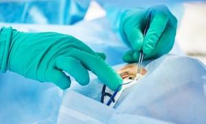 Методы проведения лазерной дакриоцисториноскомии