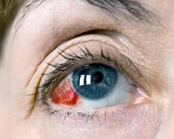 Основные симптомы субконъюнктивального кровоизлияния глаз