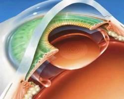 Как проводится операция по удалению катаракты с заменой хрусталика глаза