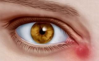 Методы лечения дакриоцистита у взрослых