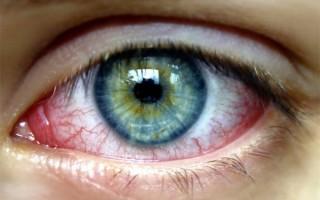 Виды возможных последствий конъюнктивита