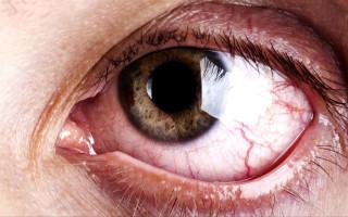 Причины появления красных сосудов в глазах
