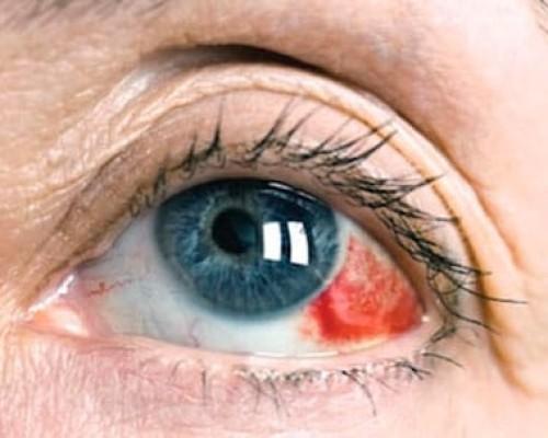 Основные факторы появления красных пятен в глазах