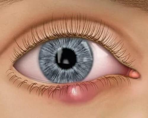 Особенности лечения  глазного ячменя на веке
