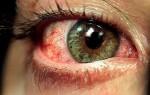 Что делать если глаза сильно покраснели и слезятся