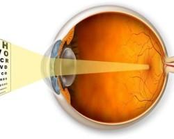 Как распознать первые симптомы дальнозоркости