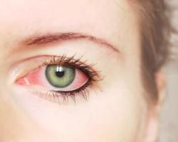Основные причины появления синдрома красных глаз