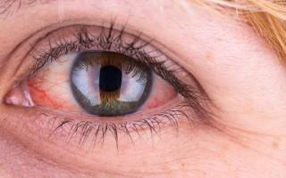 Что делать если белки глаз покраснели