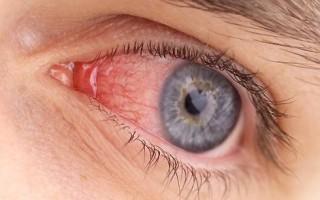 Конъюнктивит глаз: что это такое и чем лечить