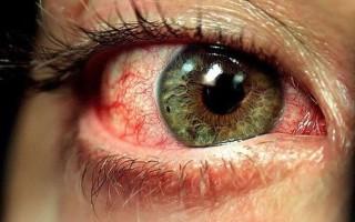 Как лечить глаза которые покраснели и налились кровью