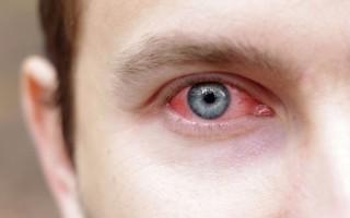 Особенности острого конъюнктивита у взрослых