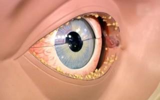 Причины покраснения и нагноения глаз у взрослого человека