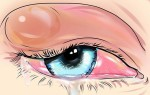 Основные симптомы холодного или застывшего ячменя