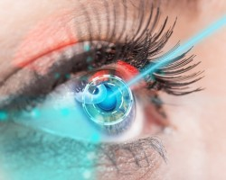 Виды лазерных операций по удалению катаракты