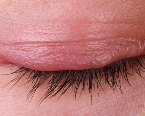 Основные причины воспаления век и лечение покраснения глаз