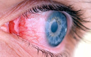 Каковы причины развития аденовирусного конъюнктивита и как его лечить