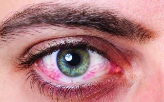 Быстрое удаление покраснения в глазах