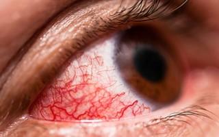 Конъюнктивит глаз у взрослых: как и чем лечить в домашних условиях