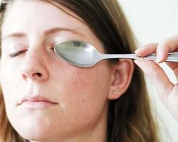 Что делать если долго не проходит глазной ячмень