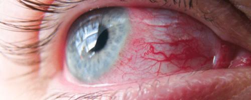 Главные симптомы и лечение вирусного конъюнктивита глаз