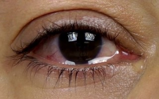 Для чего делать глаза красными