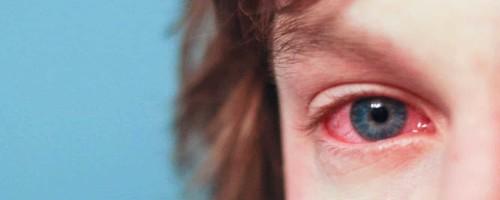 Почему у ребенка покраснели глаза