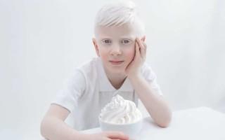 Факты и особенности жизни альбиносов с красными глазами