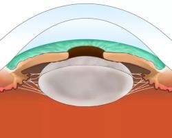 Что является причинами появления катаракты