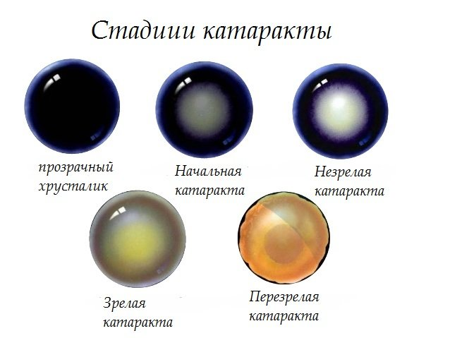 Врожденная катаракта у детей лечение