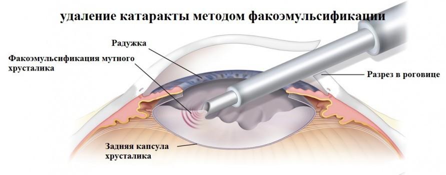 Фокоэмульсификация катаракты