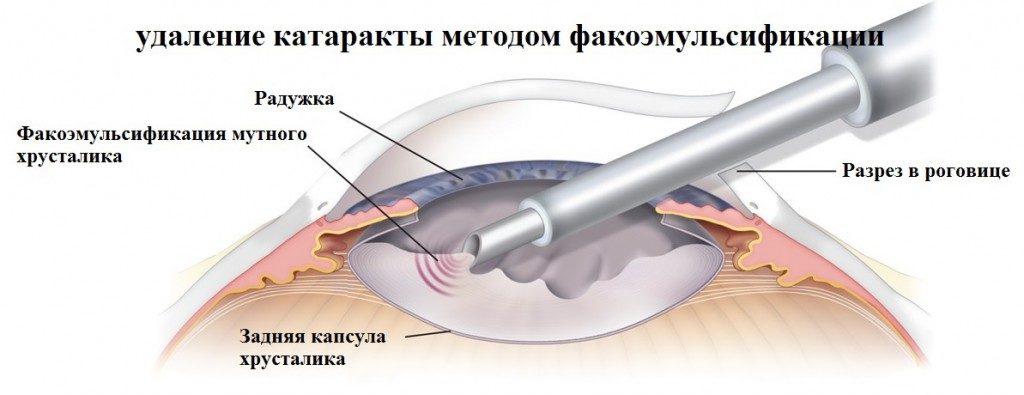 Факоэмульсификация катаракты