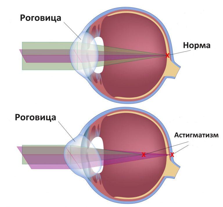 Где в рязани подобрать очки для зрения