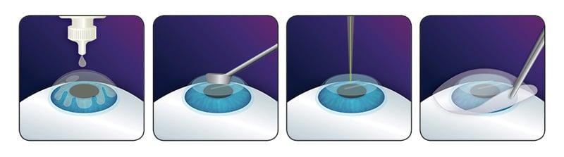 Лазерный кератомилез