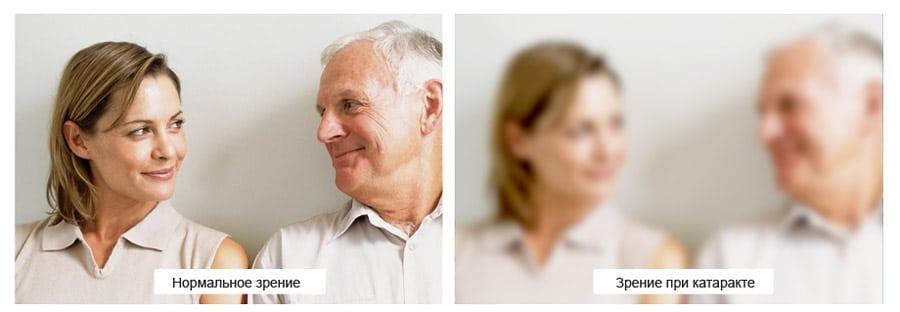Как видит человек при катаракте
