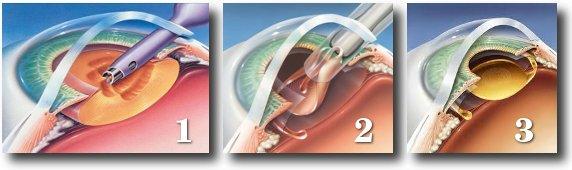 Лазерная операция вторичной катаракты