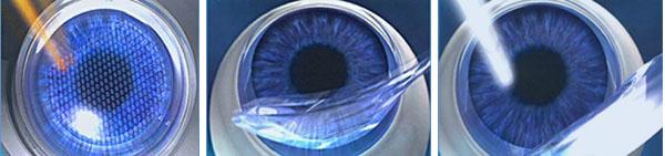Лазерная операция глаз