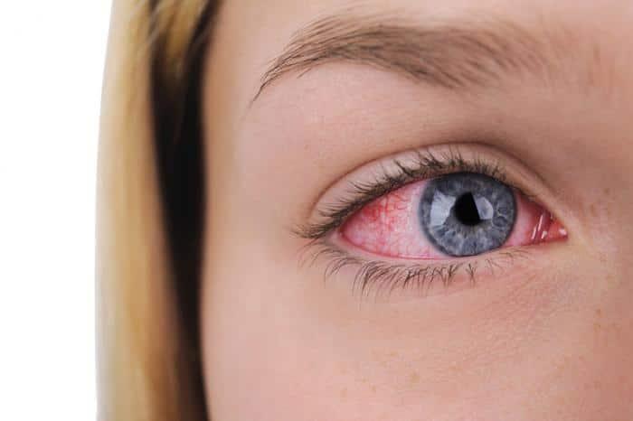 Симптомы конъюнктивита при хронической и острой стадии аллергической, вирусной и бактериальной этиологии заболевания