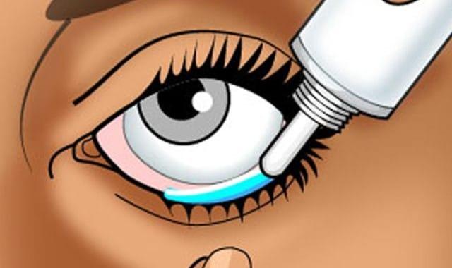 Методика применения глазной мази