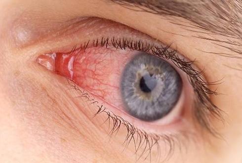 Конъюнктивит с отекшим глазом