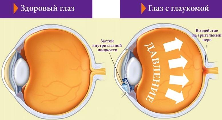 Как выглядит глаукома